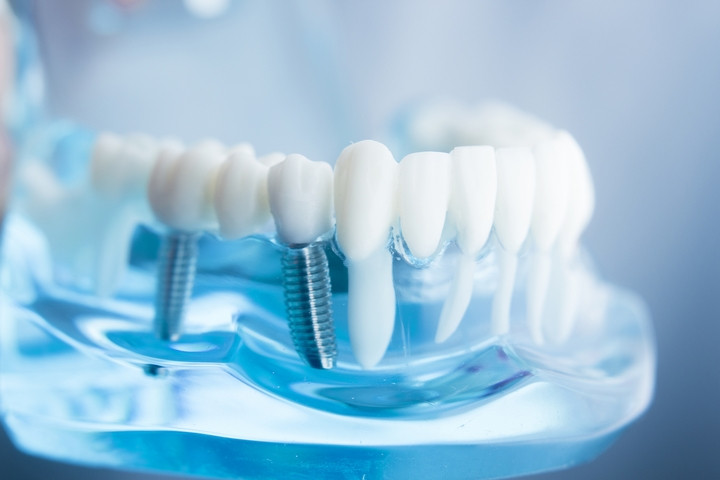 Titanium Power: 3 Benefits of Titanium Dental Implants