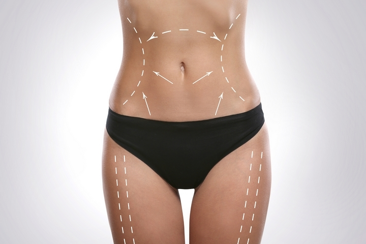 Alternative to Weight Loss: 5 Practical Reasons to Getting a Tummy Tuck
